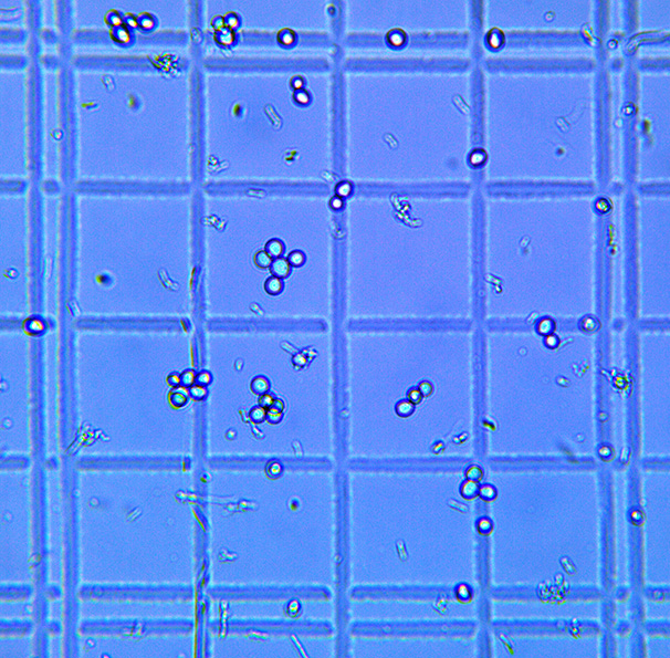 A microscopic view of both Saccharomyces (large round cells) and Lactobacillus (small rod shaped cells) in one of the author's fast souring beers.